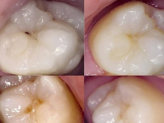 Karijes na zube