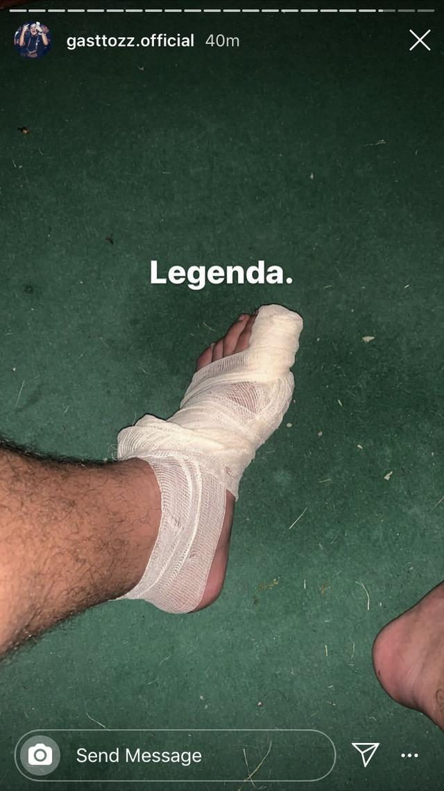 Gastoz povredio prst