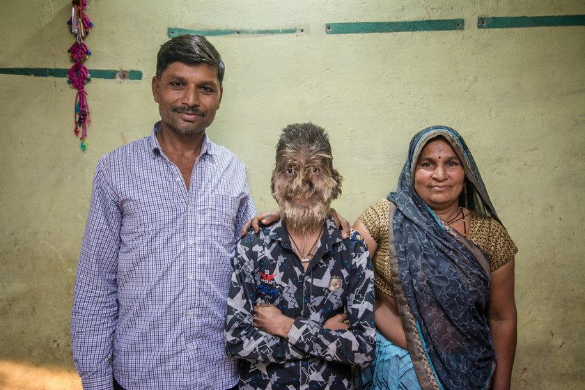 Lalit Patidar cierpi na hipertrichozę. Ma twarz pokrytą włosami