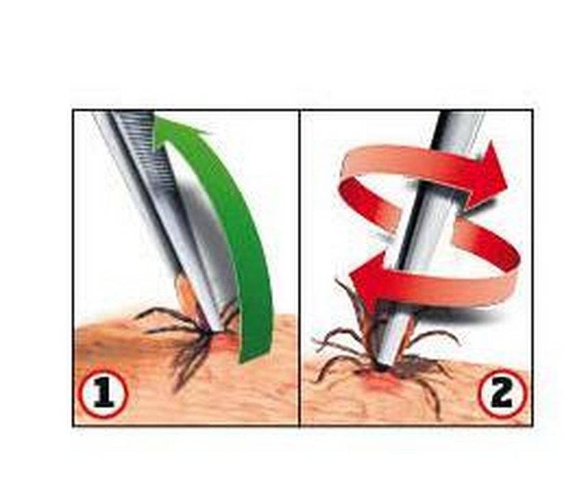 Żeby bezpiecznie usunąć kleszcza trzeba użyć pęsety, pompki lub na przykład karty (są dostępne aptekach). Wyciągnij go ruchem po łuku zgodnym z kątem wkłucia (1). Nie wykręcaj kleszcza! (2) – to niebezpieczny mit