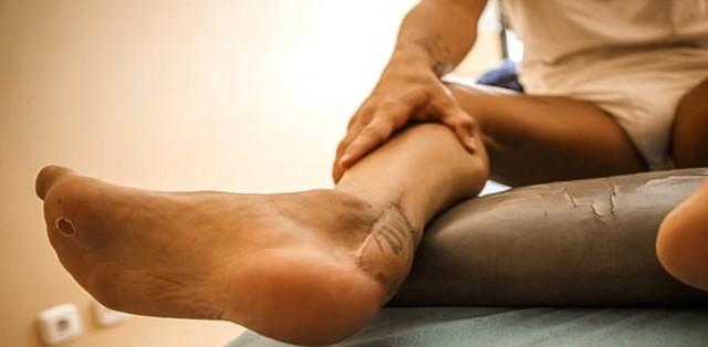 Ovako je izgledala noga Santija Kazorle posle niza operacija