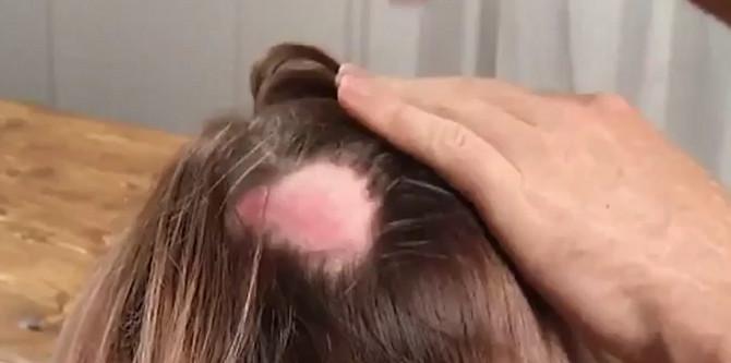 Farba joj je upropastila kožu glave