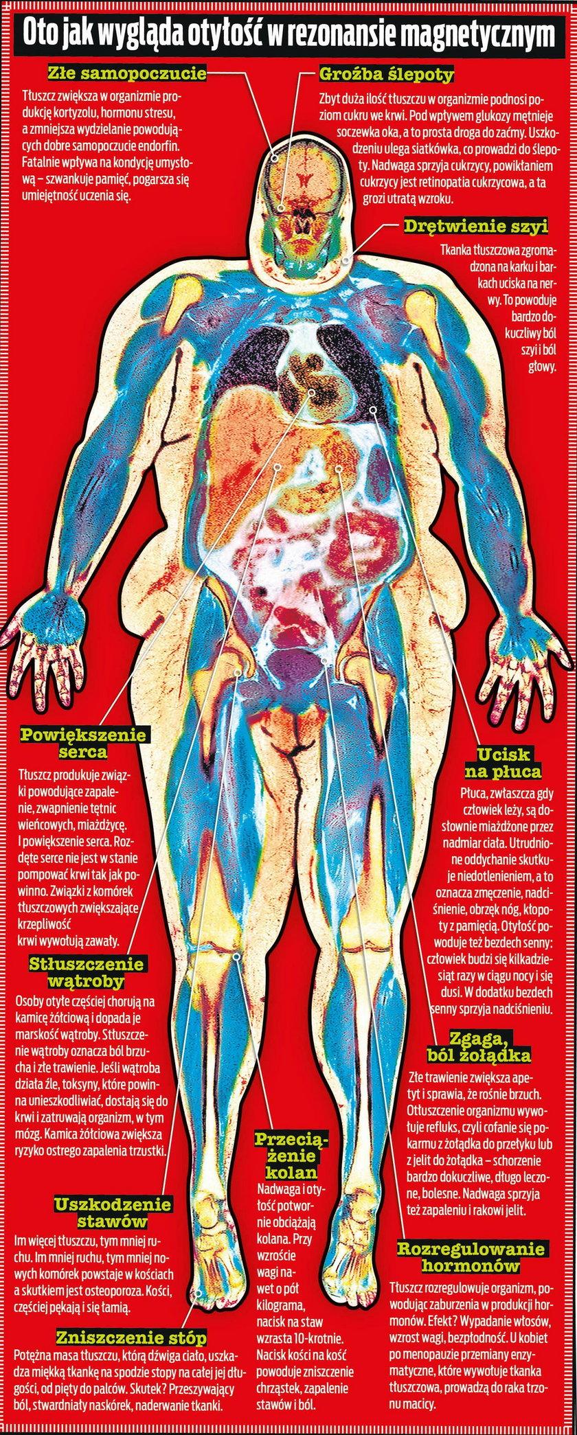 Tak wyglądają konsekwencje otyłości w rezonansie magnetycznym