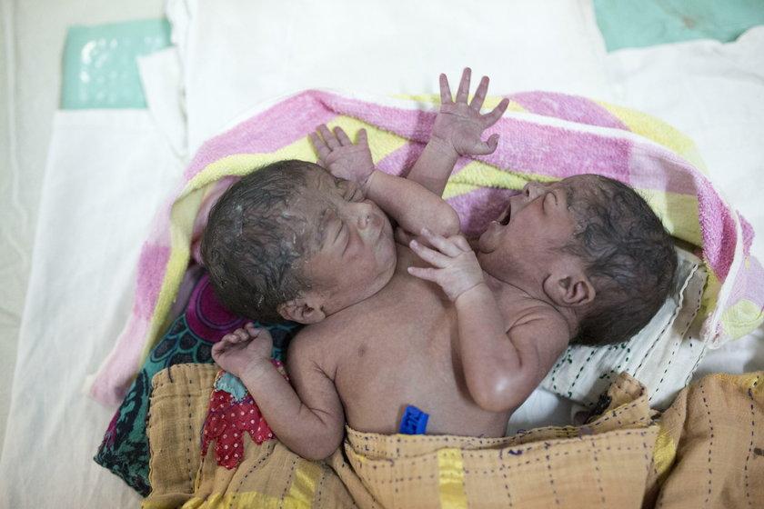 Bliźnięta syjamskie porzucone w szpitalu