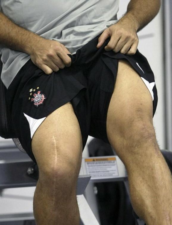 Operacije kolena najavile su kraj legendarne karijere