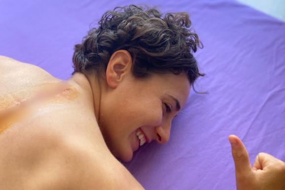 OVA DEVOJKA JE PRAVA LAVICA Doživela strašnu povredu, ima ogroman OŽILJAK preko leđa i poruku koja motiviše više nego išta! /FOTO/