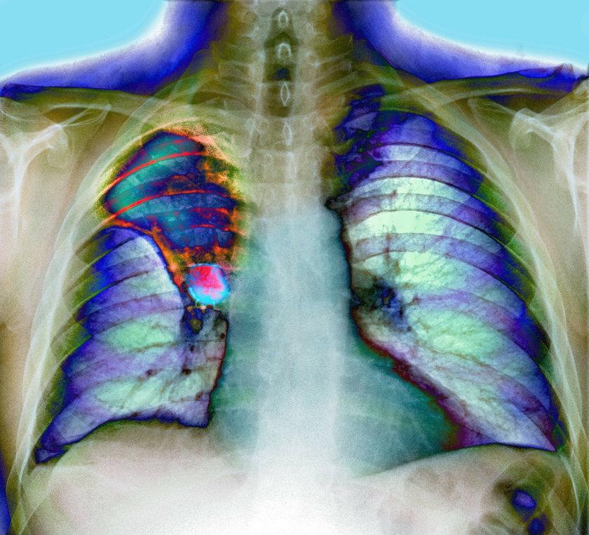 Rak płuc i gardła
