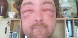 Tak puchną alergicy! Horror!