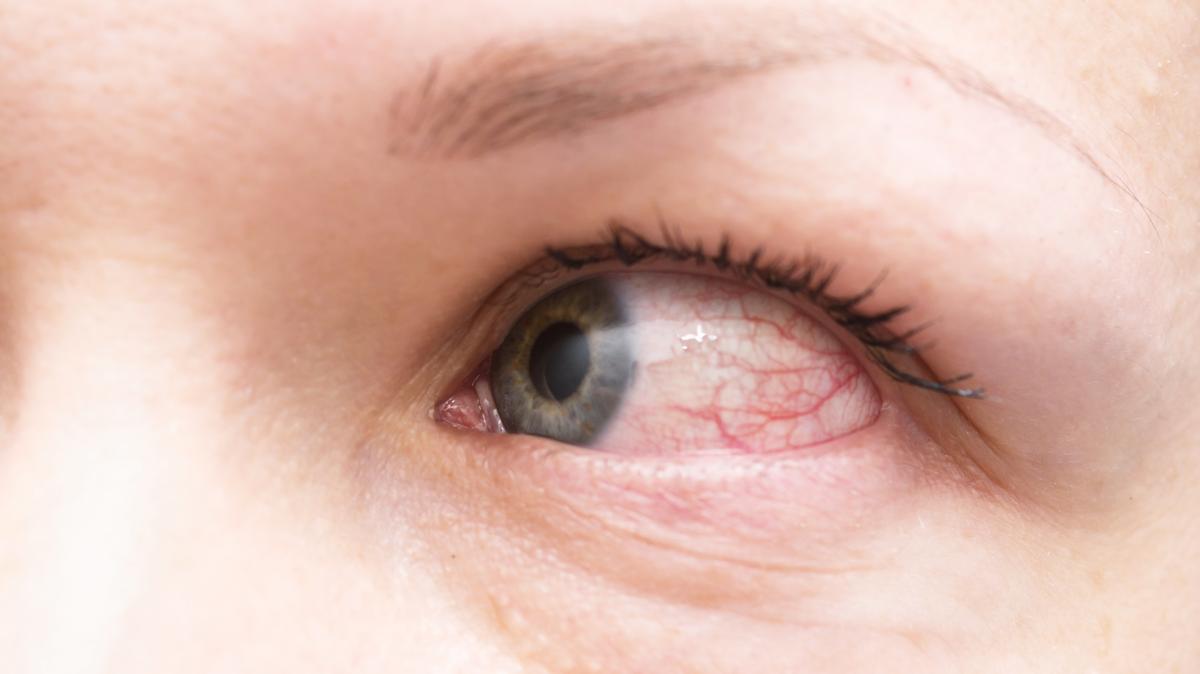 magas vérnyomás és a szem pupillái hipertóniás fiziotének kezelése