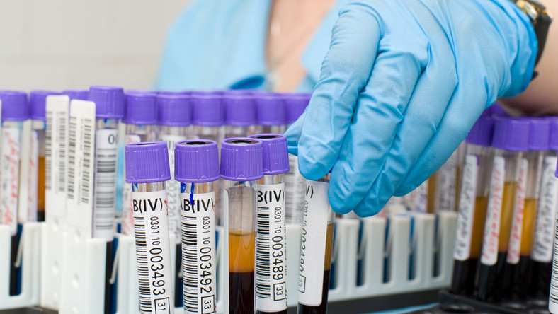 I23 dzieci zakażonych wirusem HIV podczas transfuzji krwi