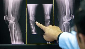 rheumatoid arthritis csípőízület boka duzzanata sérülés után, mint kezelni