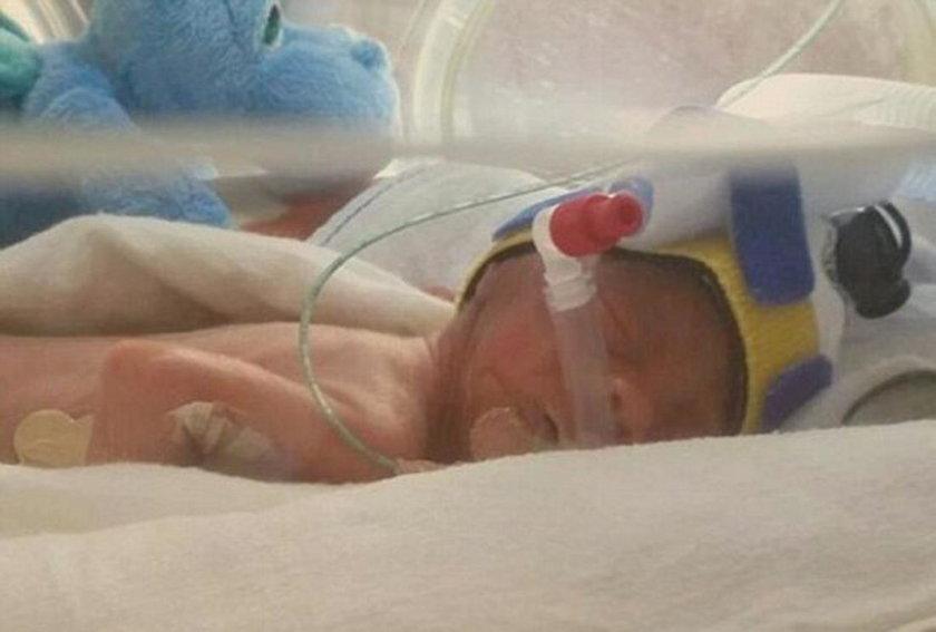Urodził się w 25. tyg. ciąży. Życie uratował mu plastikowy worek