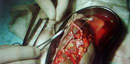 Lekarze pomylili nerki podczas przeszczepu