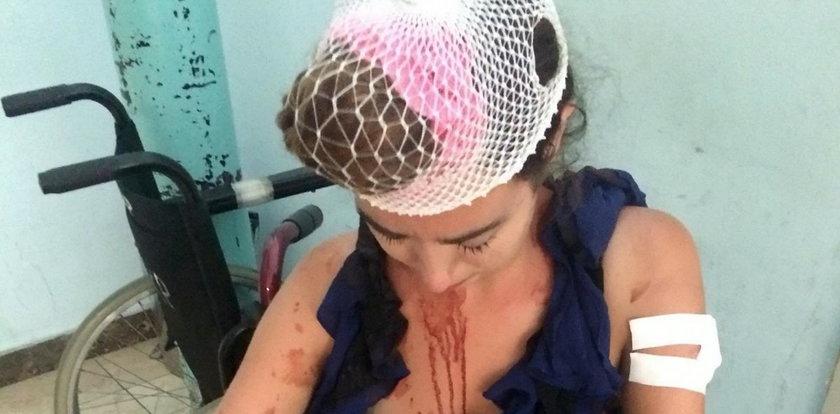 Turystka brutalnie pobita w Chorwacji. Właściciel hostelu zrobił jej coś strasznego