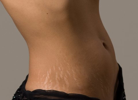 This makes dealing with stretch marks more frustrating [ece-auto-gen]