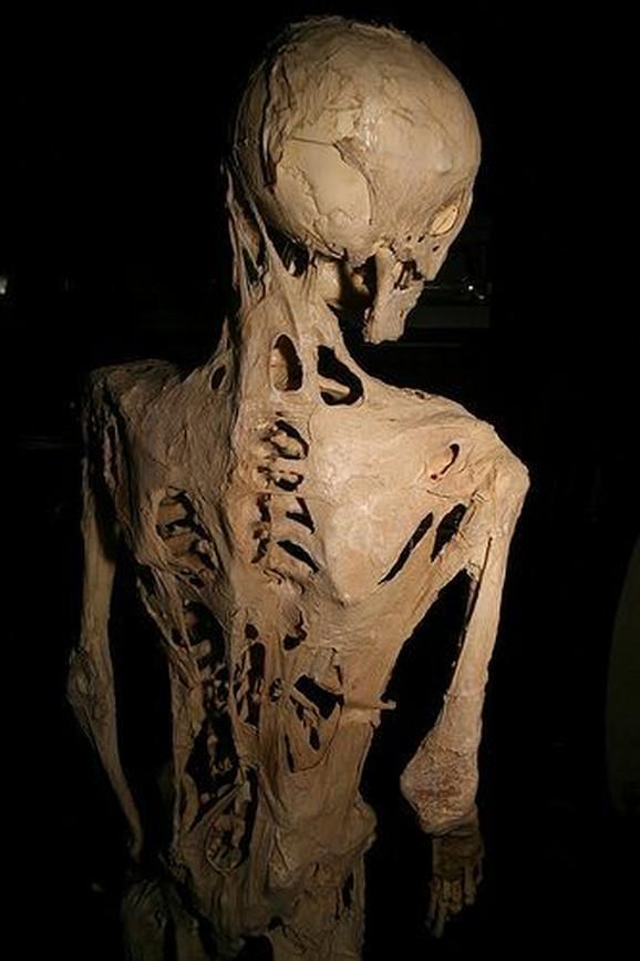 Fibrodisplazija