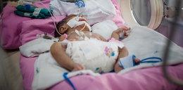 Horror na porodówce. Lekarze usmażyli niemowlę!