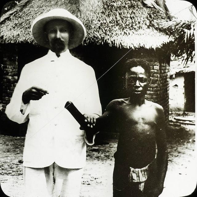 Dete žrtva belgijskih kolonizatora