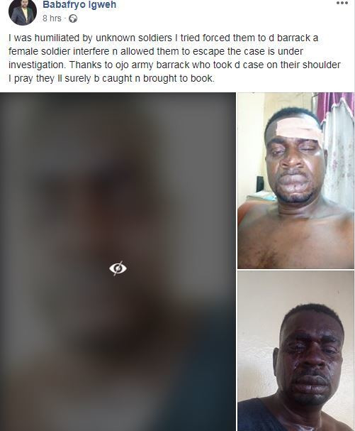 Baba Fryo is presently nursing injuries sustained after he was allegedly beaten by men of the Nigeria Army [Facebook/BabaFryoIgweh]