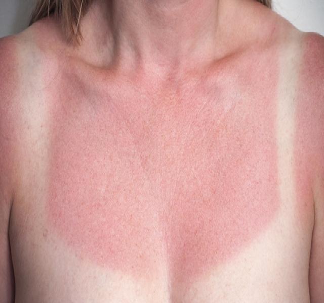 leégés után vörös folt jelent meg az arcon)