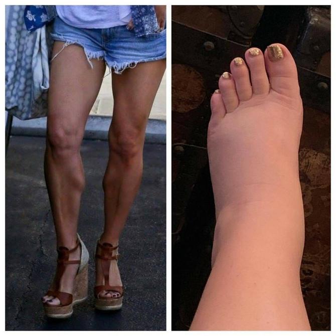 Džesika Simpson se tokom treće trudnoće požalila da joj otiču noge. Kako bi to dočarala, objavila je na Instagramu sliku pre drugog stanja
