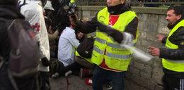 Groza w Paryżu. Jeden z demonstrantów... stracił rękę