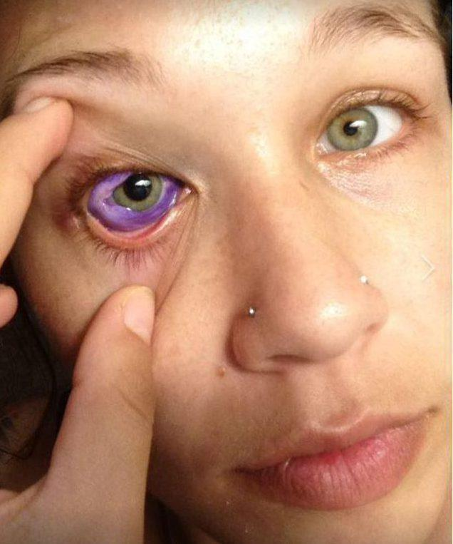 Tatuażysta zepsuł kobiecie oko