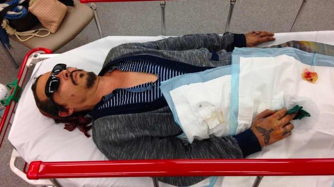 Džoni Dep u bolnici