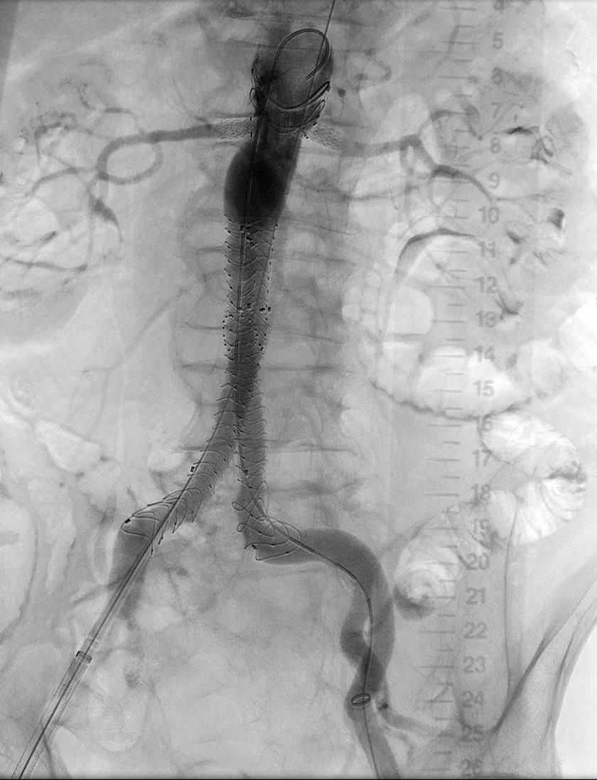 Tętniak aorty brzusznej wyłączony z krążenia