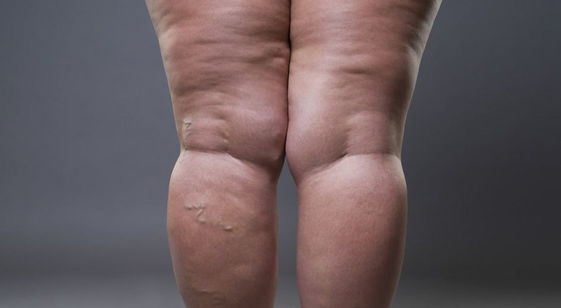 Simple ways to get rid of cellulite