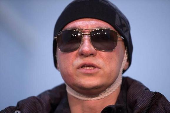 Sergej Filin se oporavlja, ali ima problema sa vidom