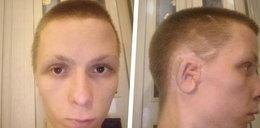 Kamil zbiera pieniądze na kosztowną operację ucha. Pomóżmy 23-latkowi spełnić jego marzenie!