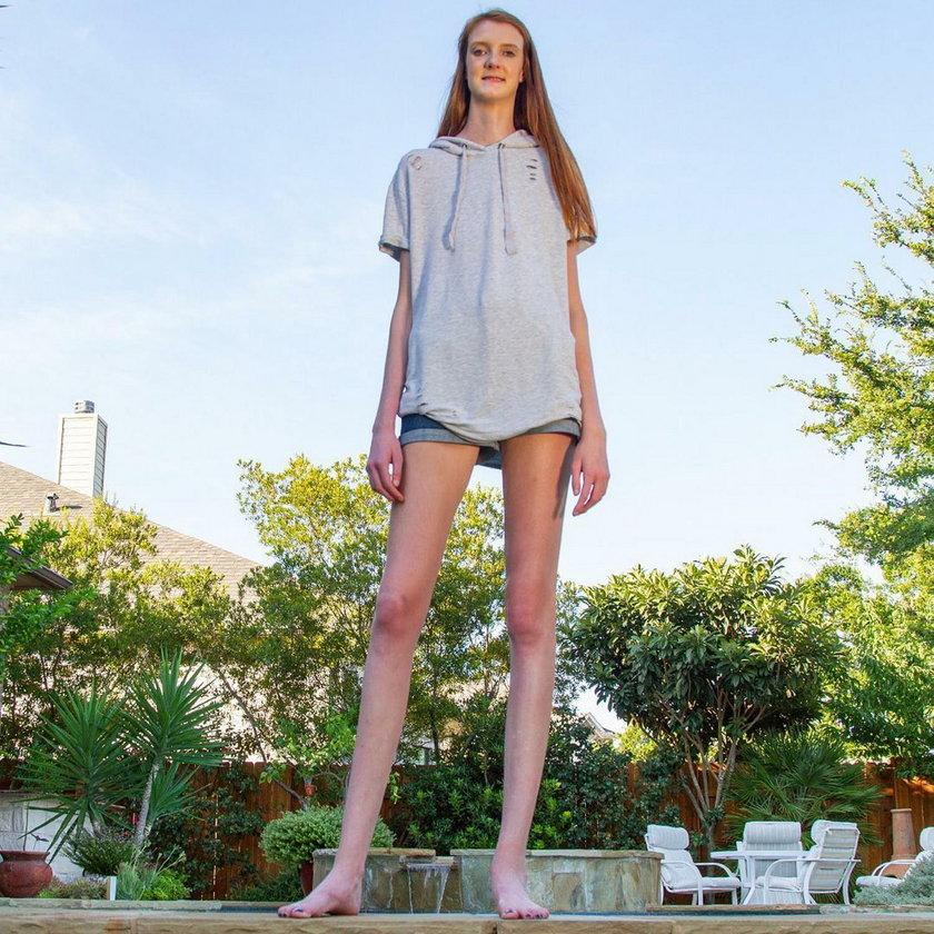 Ta dziewczyna ma najdłuższe nogi na świecie. I ciągle rośnie
