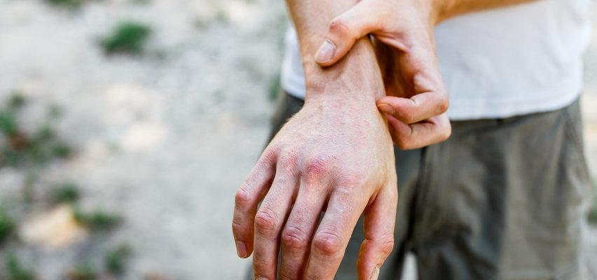 Dlaczego atopowe zapalenie skóry wraca jesienią?