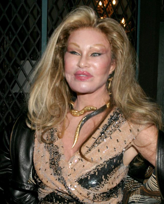 Žozelin je primer loše estetske hirurgije
