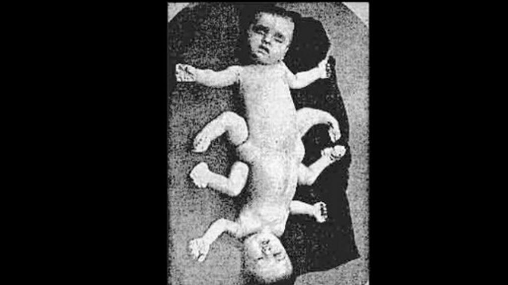 """Onet. Reportaż: Słodkie życie doktora Mengele"""""""