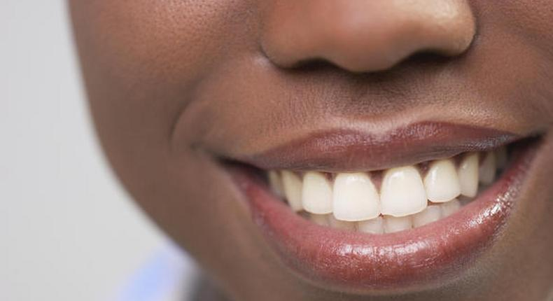 5 natural ways to make your teeth white and shiny