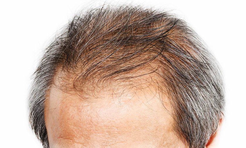 Indie: Biznesmen przeszczepił sobie włosy. Zmarł na skutek alergii