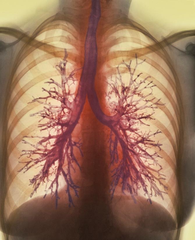 Eksperiment sa plućima koji je zadivio stručnu svetsku javnost