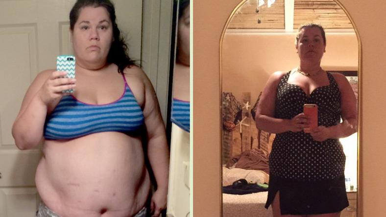 '9 things I wish I knew about gastric bypass surgery before I had it'