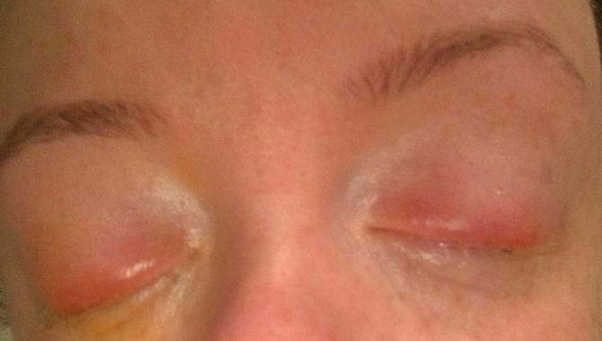 Emadžani Dafni posle alergije na šminku nije mogla da otvori oči
