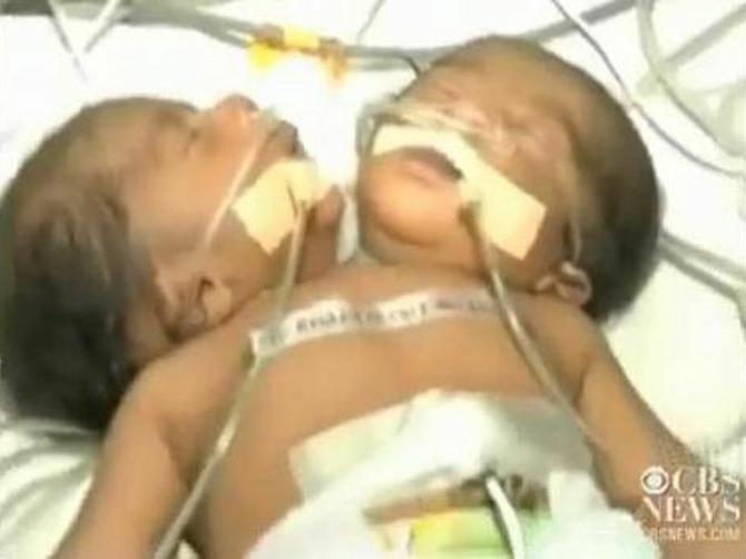 Medicinsko čudo: Mogu li lekari da spasu dečaka sa dve glave?