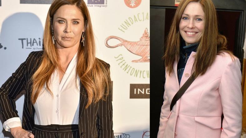 Aktorka przyznała, że od kliku lat korzysta z botoksu. Czy można by to zauważyć, gdyby nie to szczere wyznanie?