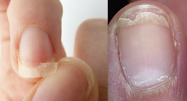 How you can naturally treat brittle nails. [Pinterest]