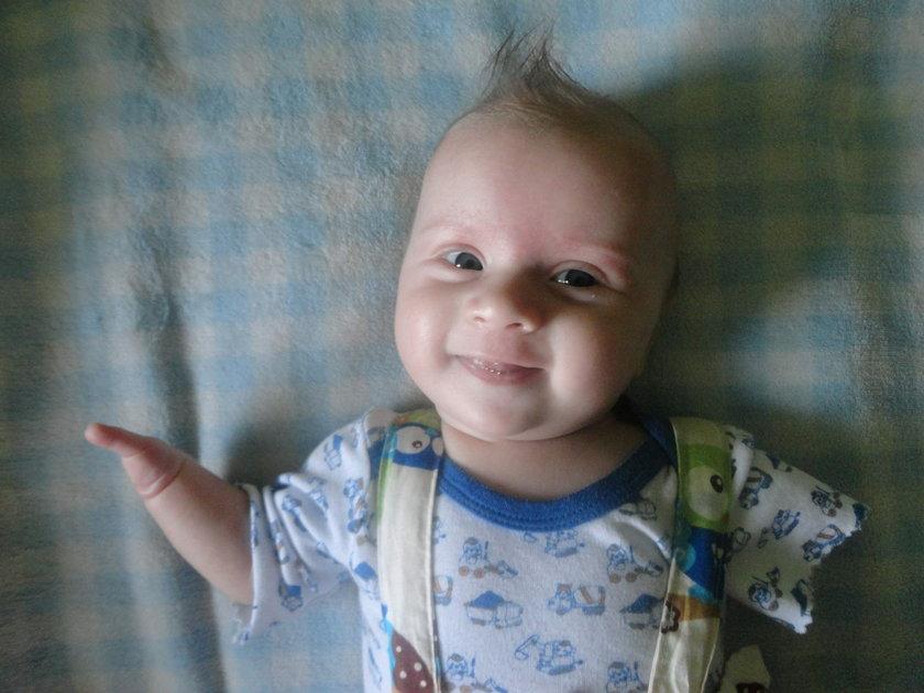 Zawiercie. Trzymiesięczny Oliwer urodził się bez rak i nóg