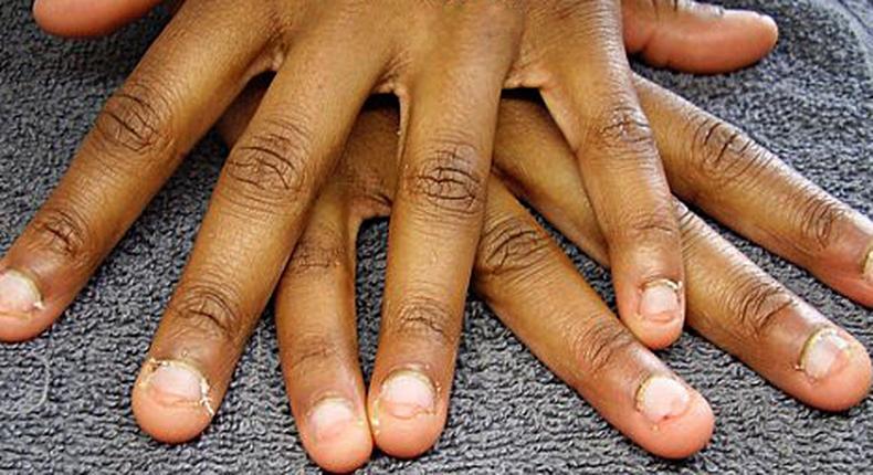 Stop nail biting (Today Newspaper)