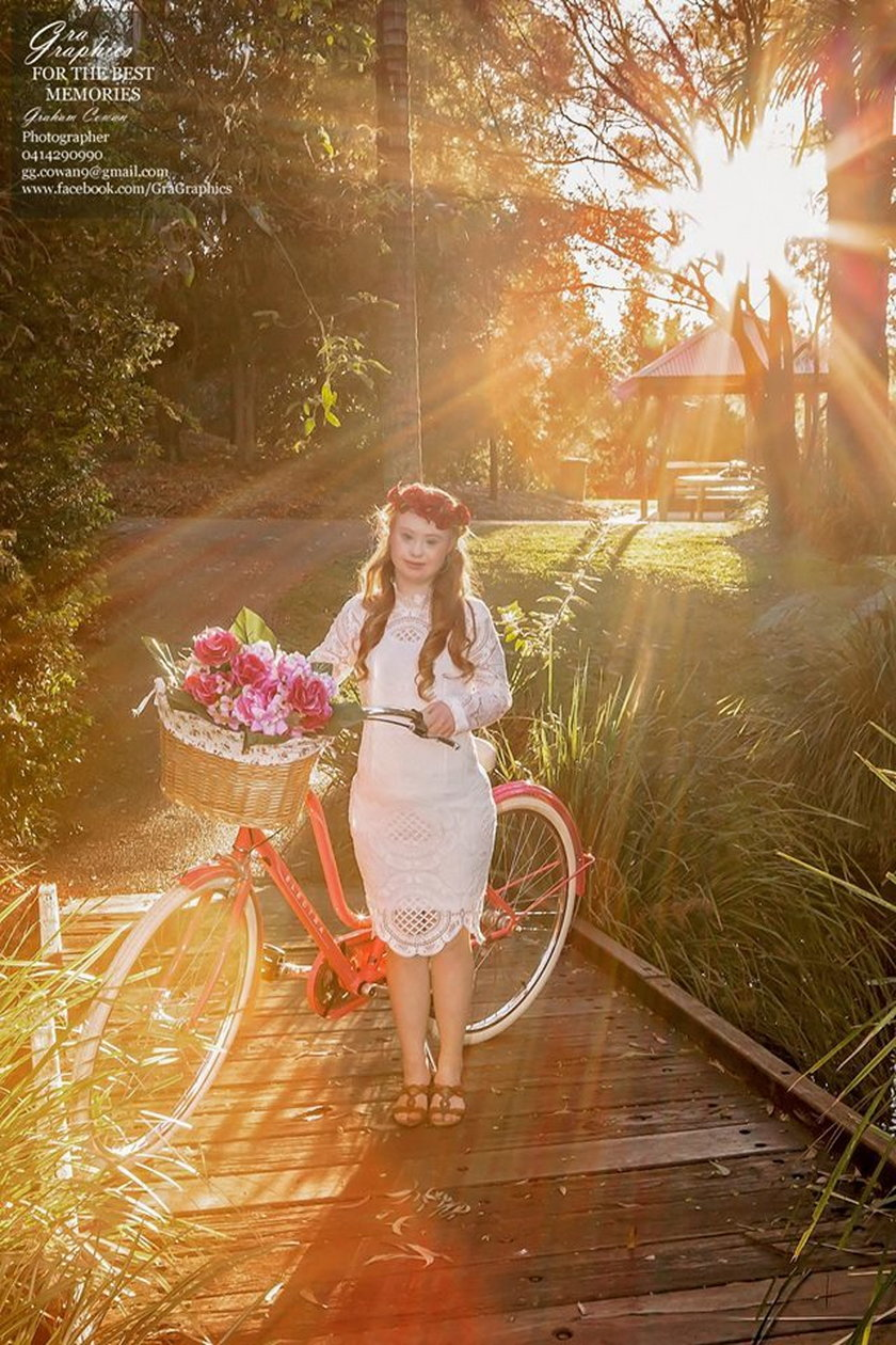 Modelka z zespołem Downa podbija świat mody