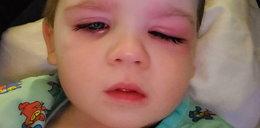 Synek blogerki omal nie stracił oka, bo bawił się tym w wannie
