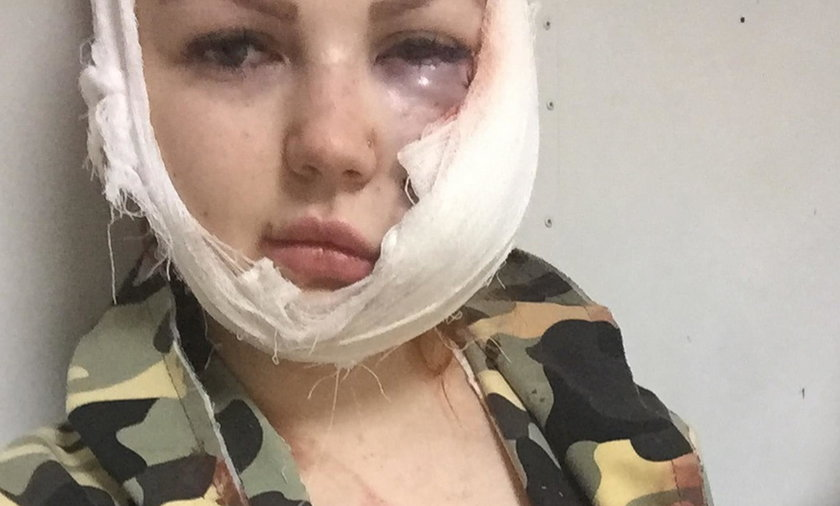 Horror w barze karaoke! Podczas kłótni oszpeciła 26-latce twarz