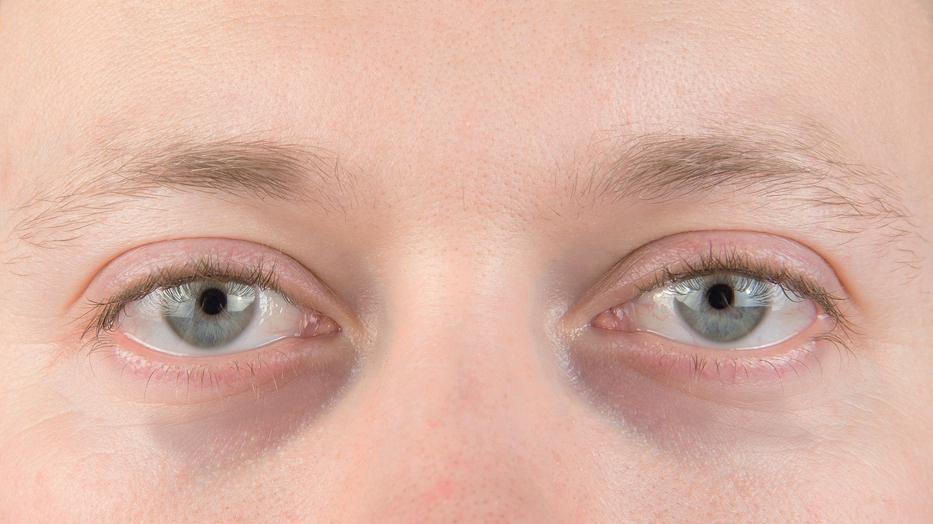 karikák a szem alatt magas vérnyomásban
